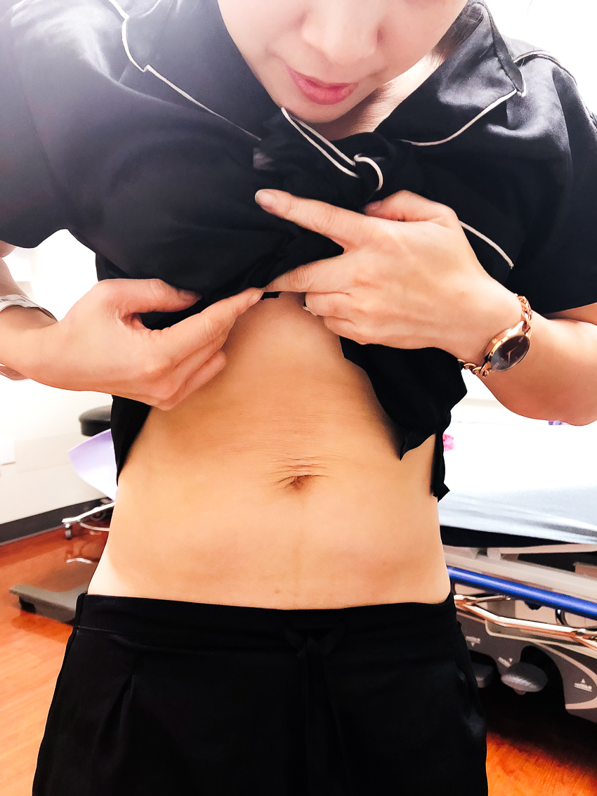 fixing diastasis recti with tummy tuck abdominoplasty surgery - My Tummy Tuck Story and Tips For Recovery featured by popular Dallas lifestyle blogger Cute & Little
